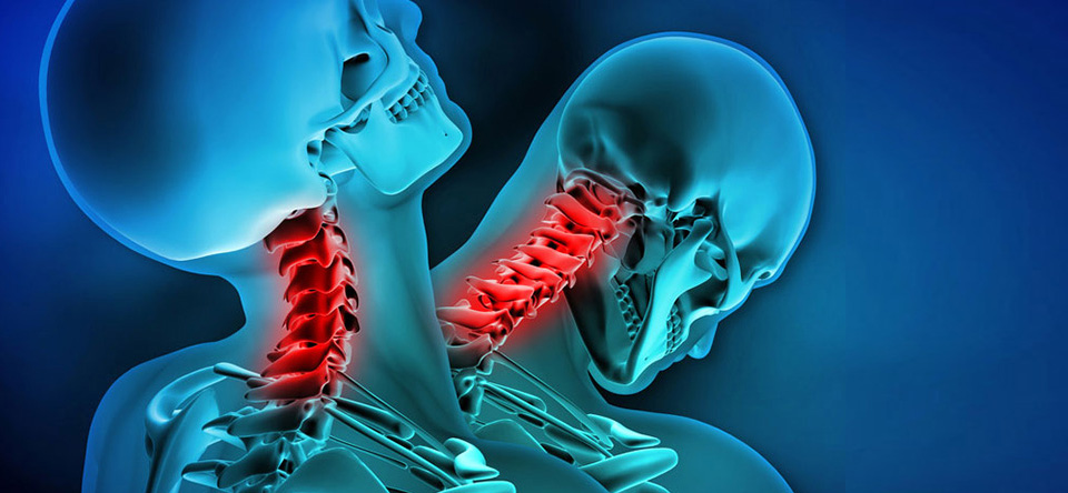The Biomechanics of Whiplash Injury